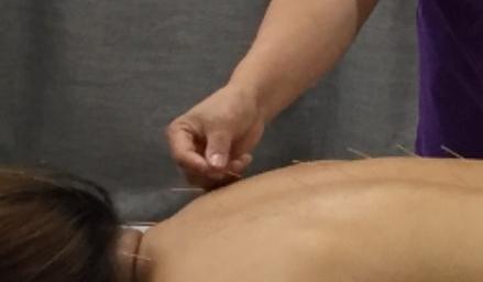 Needling
